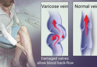 excercises for varicose veins-best exercises to prevent varicose veins